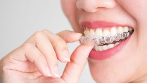 Eating with Invisalign: Foods to Avoid With Invisalign